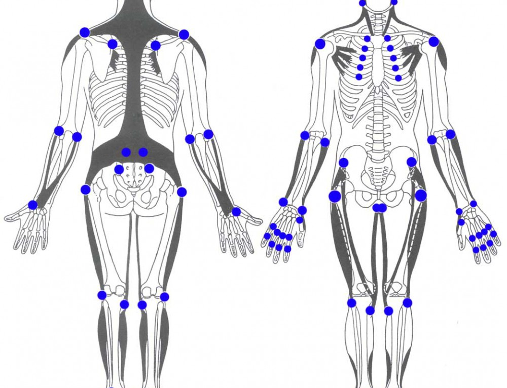 Muskelschmerzen – Schmerzsyndrome