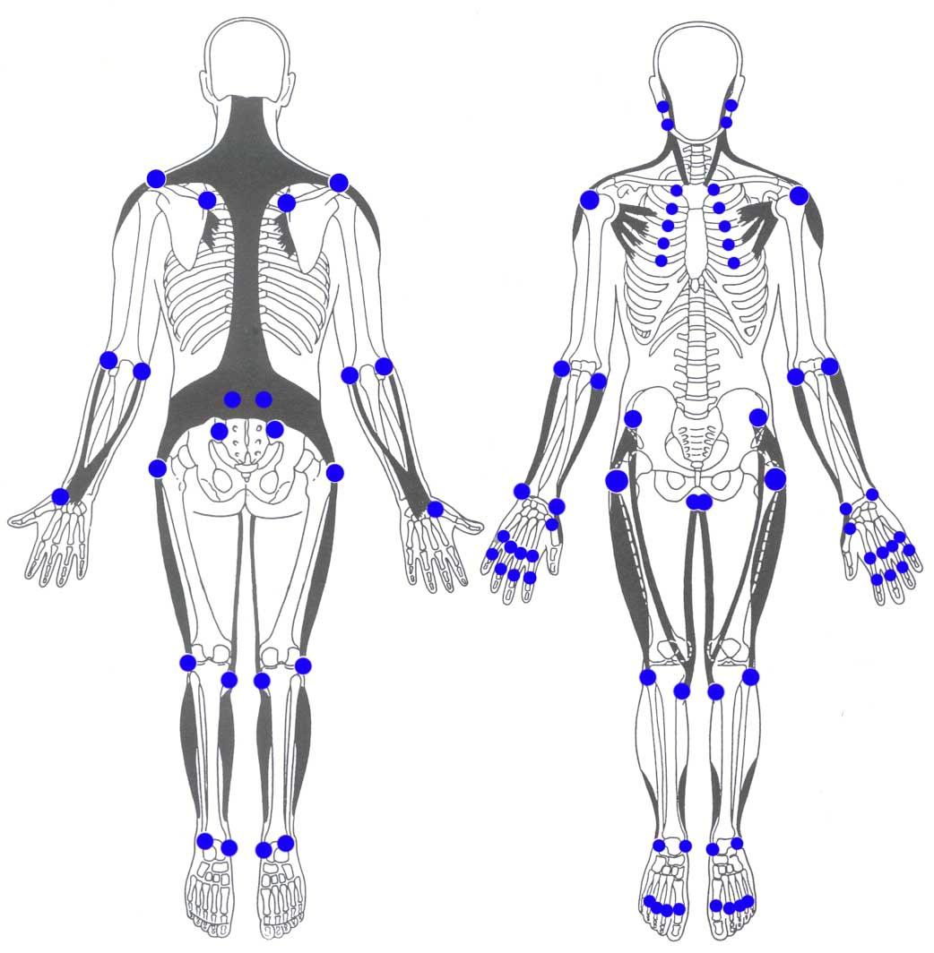 Myogelosen sind verhärtete Verspannungen – Chiropraktik Kropshofer