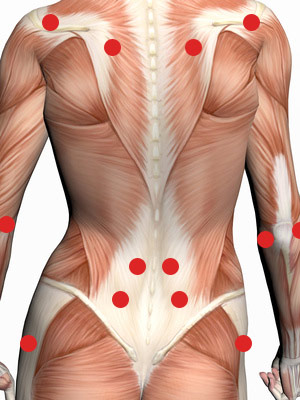 Triggerpunkte sind Schmerzpunkte – Chiropraktik Kropshofer