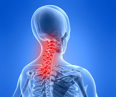 Anatomie der Halswirbelsäule – Chiropraktik Kropshofer
