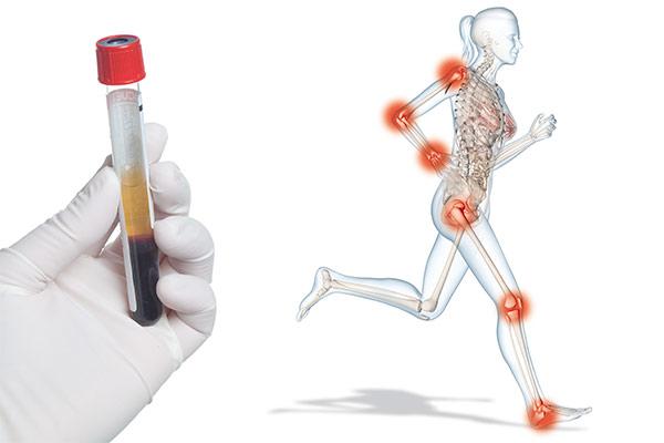 PRP Therapie bei Arthrose- und Überlastungsschäden
